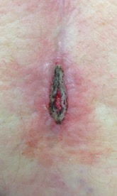 Surgical Wounds That Are Left Open on Purpose