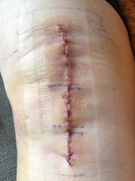 Incision Renditions: Who do some incisions fail?