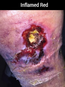 Seeing Red In The Wound Bed - Innovative Wound Healing