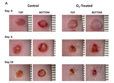 Low flow oxygenation of full-excisional skin wounds on diabetic mice improves wound healing by accelerating wound closure and reepithelialization