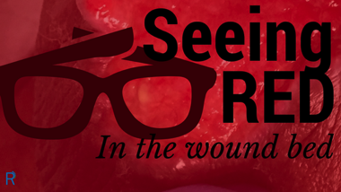 Seeing Red In The Wound Bed