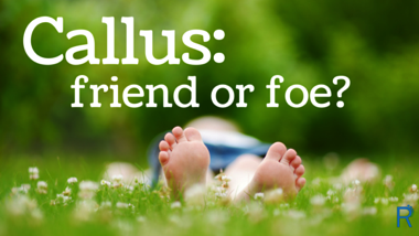 Calluses: Friend or Foe?