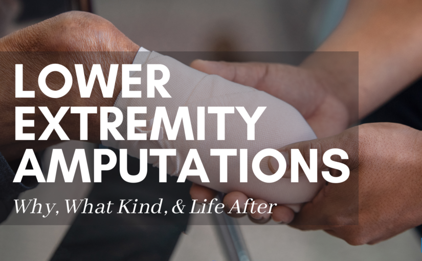 Lower Extremity Amputations: Why, What Kind, & Life After